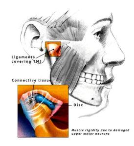 Temporomandibular joint prolotherapy image